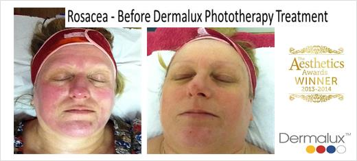 'Dermalux Tri Wave LED Light Therapy'